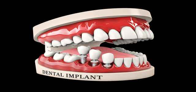 Dental and Bone Complications