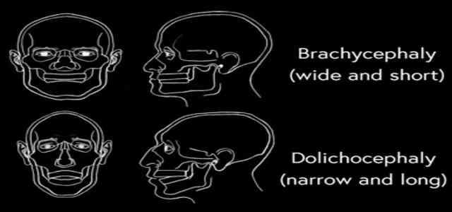 Dolichocephaly Long Narrow Skull