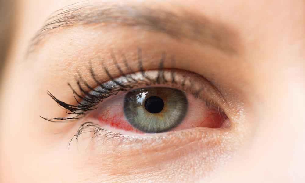 Dry or Sensitive Eyes