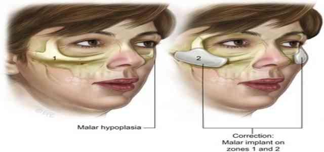 Malar Hypoplasia Flat Cheek bones