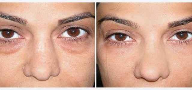 Image of Dark Circles Under Eyes of a Women