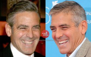 Fake Teeth George Clooney