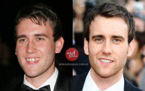 Fake Teeth Matthew Lews