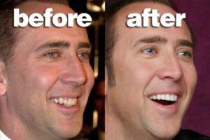 Fake Teeth Nicholas Cage