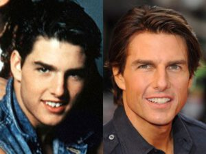 Fake Teeth Tom Cruise