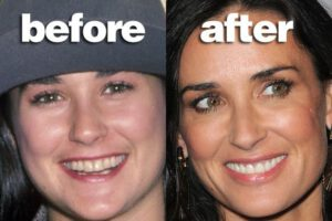 Famous Actresses Fake Teeth Demi Moore