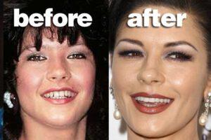 Famous Actresses Teeth Implants Catherine Zeta-Jones