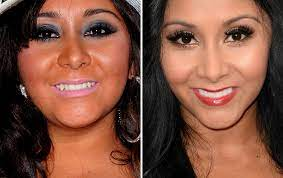 Famous Actresses Teeth Implants Snooki