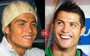 Famous Players Teeth Implants Cristiano Ronaldo