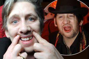 Famous Singers Teeth Implants Shane MacGowan
