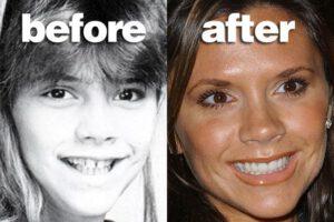 Famous Singers Teeth Implants Victoria Beckham